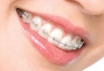 Исправление прикуса в Севастополе – ортодонтия